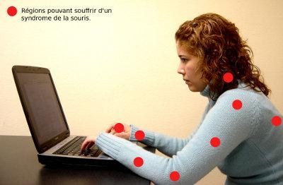 Régions corporelles pouvant être atteintes d'un syndrome de la souris.